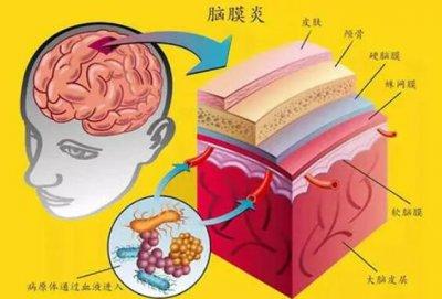脑膜炎为什么会引起头痛(脑膜炎是什么引起的)